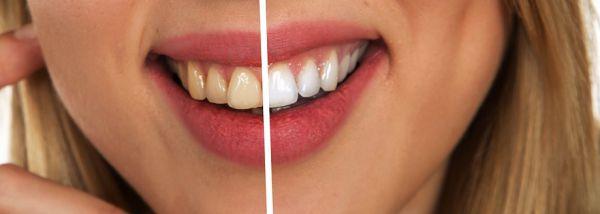albirea dinților