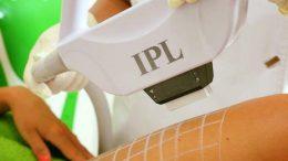 epilarea definitiva IPL